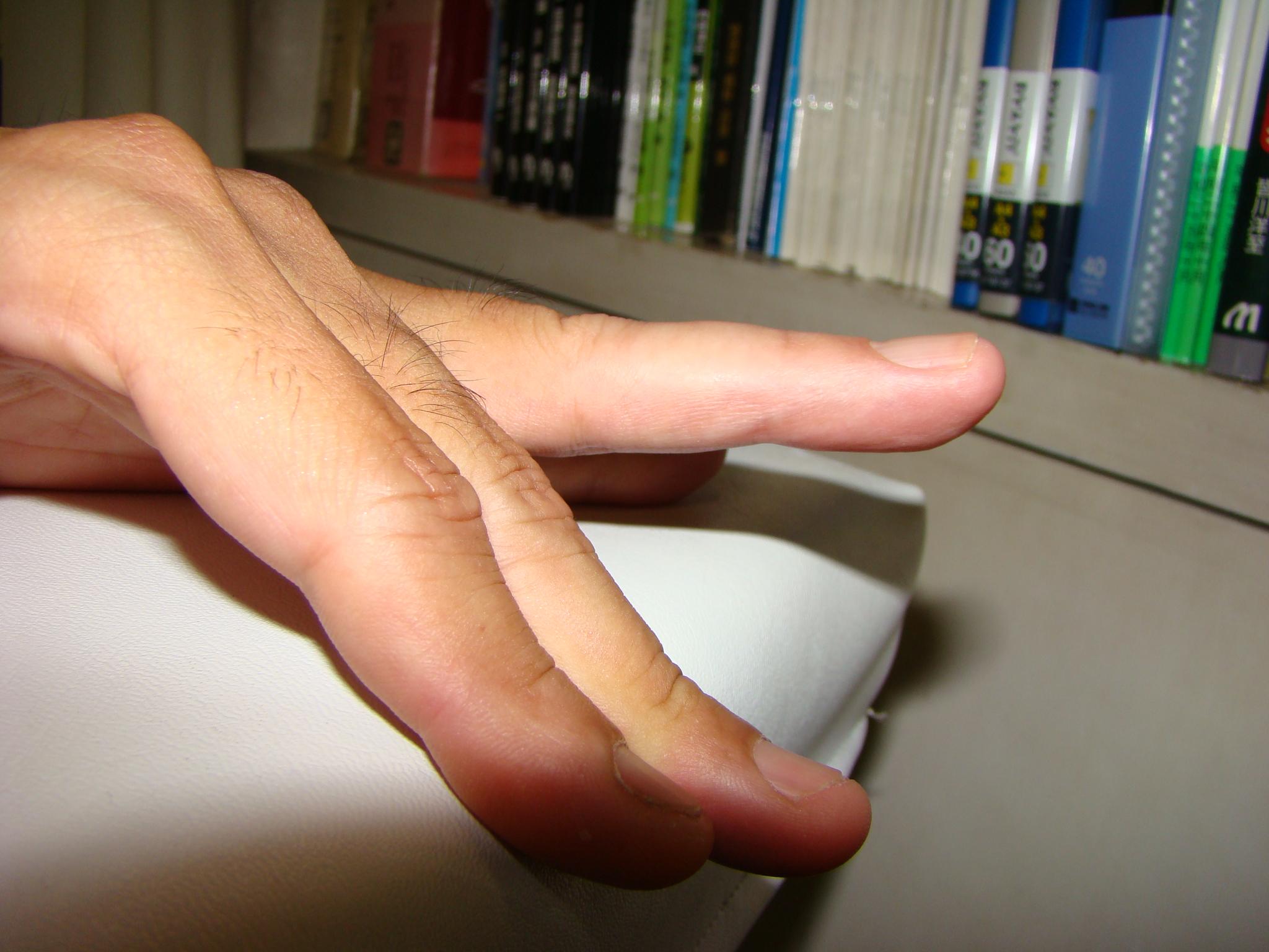 全治 何 ヶ月 骨折 指 の
